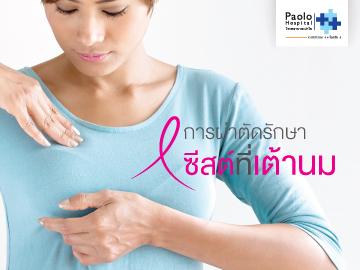 การผ่าตัดรักษาซีสต์ที่เต้านม และมะเร็งเต้านม