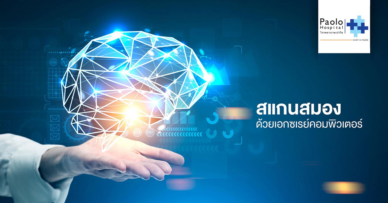 สแกนสมองด้วยเอกซเรย์คอมพิวเตอร์ (CT scan)