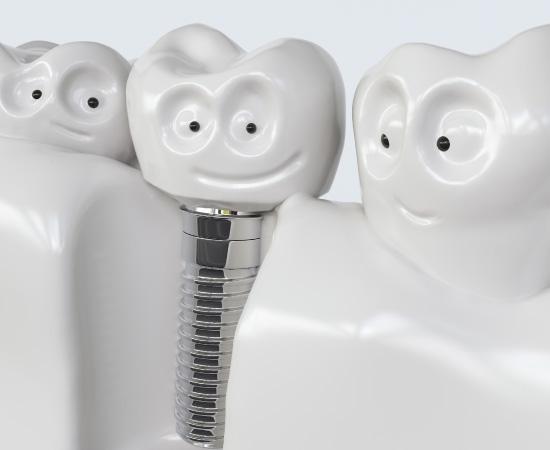 รากฟันเทียม ข้อดี และเหตุผลที่ควรใส่ เหมาะกับใครมากที่สุด