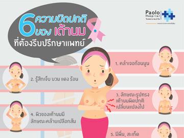 6 ความผิดปกติของเต้านมที่ต้องรีบปรึกษาแพทย์