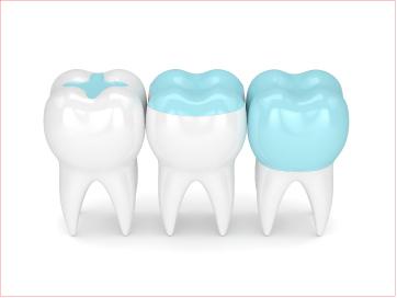 ฟื้นฟันเสียให้กลับมาสวย ด้วยการบูรณะฟัน แบบอินเลย์ และออนเลย์