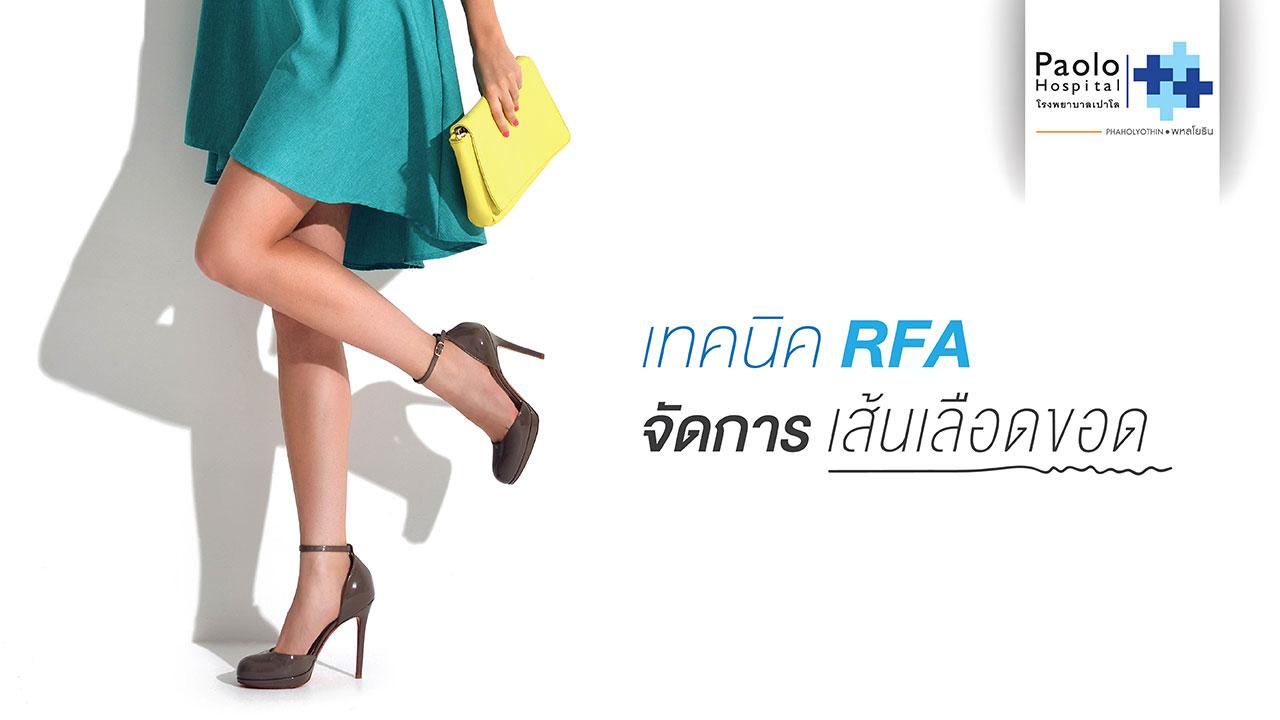 """""""RFA""""เทคโนโลยีใหม่...ช่วยจัดเคลียร์ปัญหาโรคเส้นเลือดขอด"""