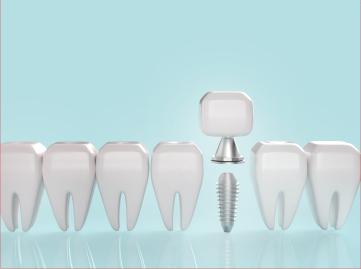 เทคนิคการเลือกรากฟันเทียม ที่ต้องรู้!