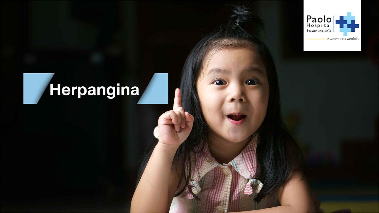เฮอแปงไจน่า (Herpangina) โรคระบาดในเด็กที่พ่อ-แม่ต้องเฝ้าระวัง