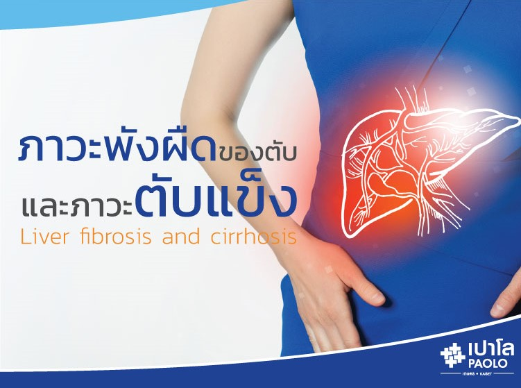 ภาวะพังผืดของตับ และภาวะตับแข็ง  (Liver fibrosis and cirrhosis)