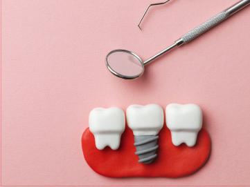 สิ่งควรรู้! ก่อนตัดสินใจทำรากฟันเทียม