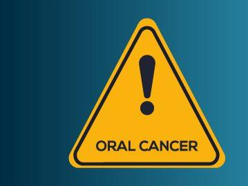 """รักษา """"มะเร็งช่องปาก"""" อย่างไรได้บ้าง?"""