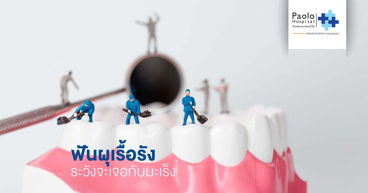 """อย่าปล่อยให้ ....""""ฟันผุเรื้อรัง""""  ระวังจะเจอกับ  """"มะเร็ง"""""""