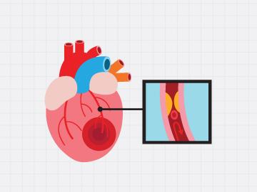 การตรวจปริมาณหินปูนในหลอดเลือดหัวใจ