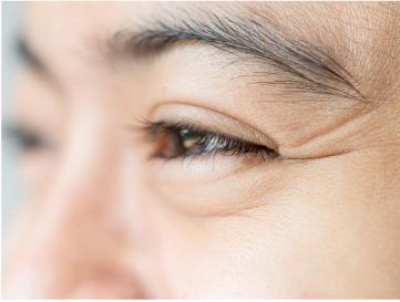 Aging eye