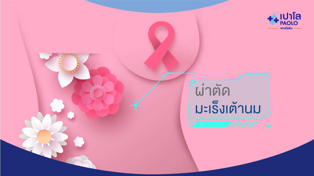 ผ่าตัดมะเร็งเต้านม
