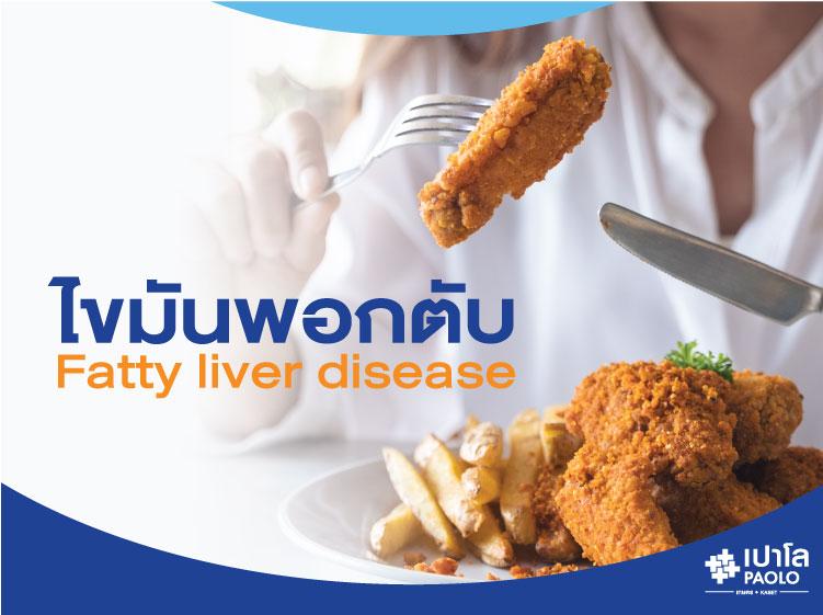 ไขมันพอกตับ (Fatty liver disease)