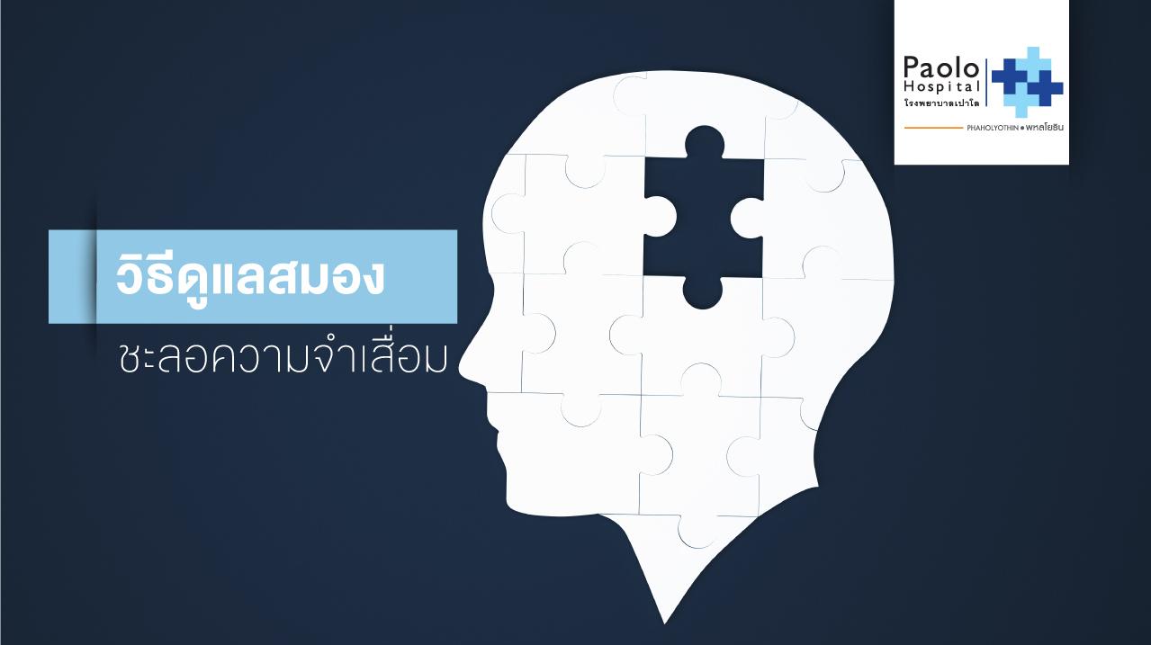 5 วิธีดูแลสมอง ชะลอโรคความจำเสื่อม