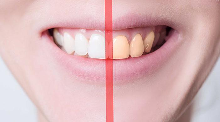 ฟอกสีฟัน อวดรอยยิ้มสวยสดใส