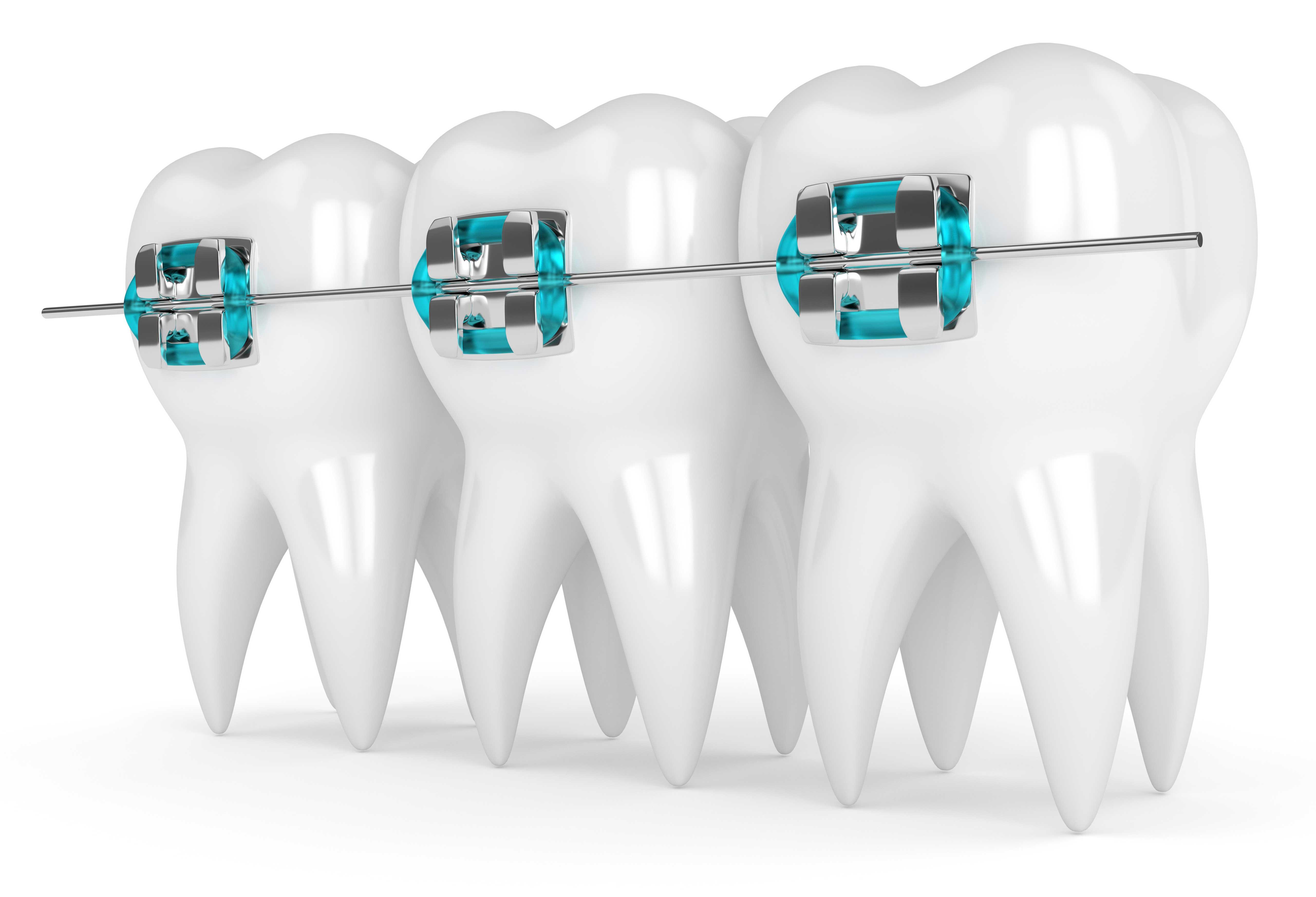 การจัดฟัน