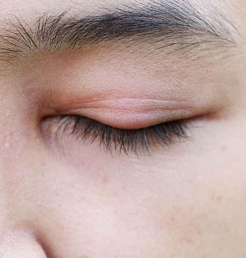 เยื่อบุตาอักเสบ หรือตาแดง