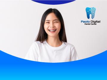 Digital Dental จัดฟันแบบติดเครื่องมือ