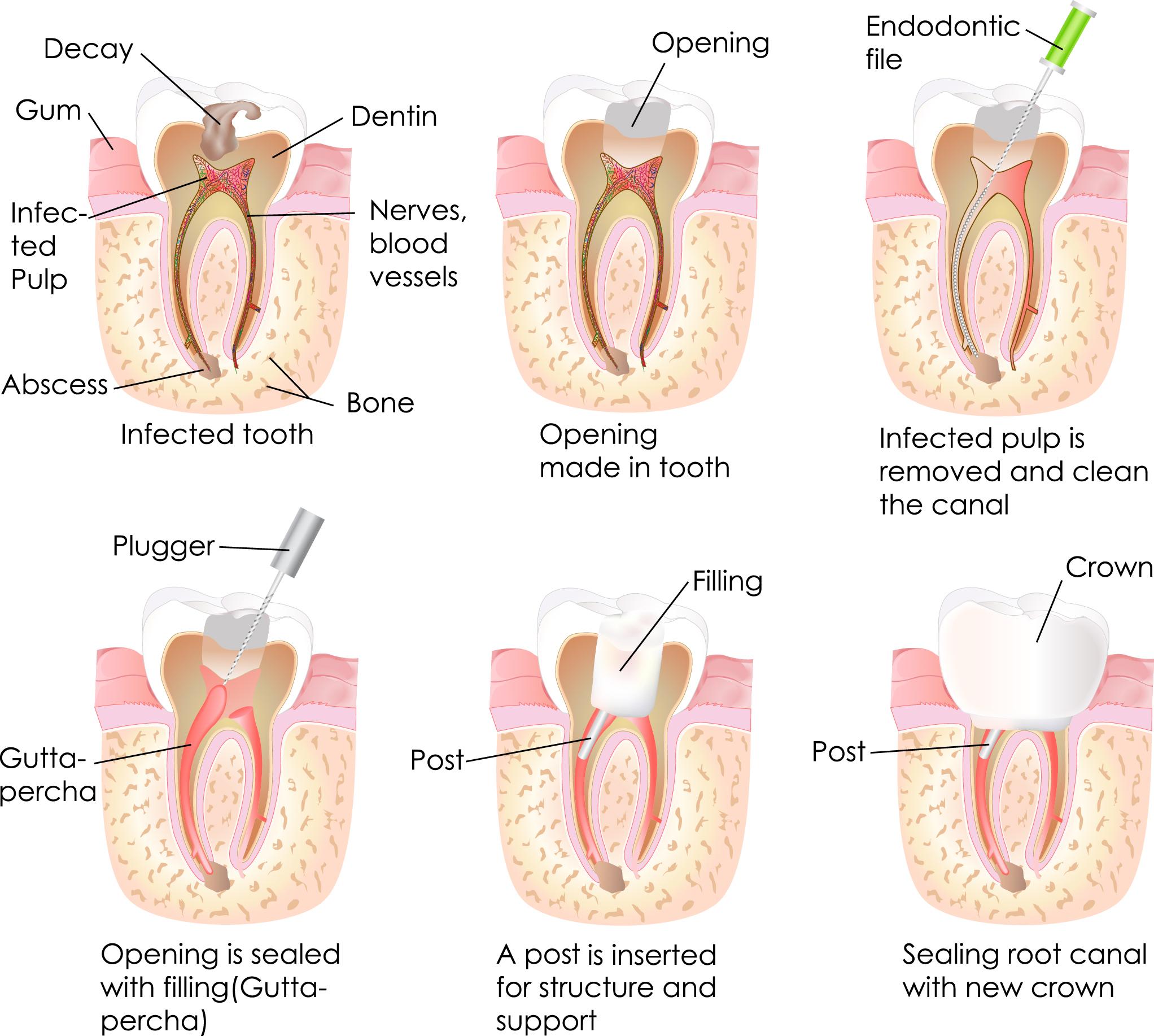 การรักษารากฟัน