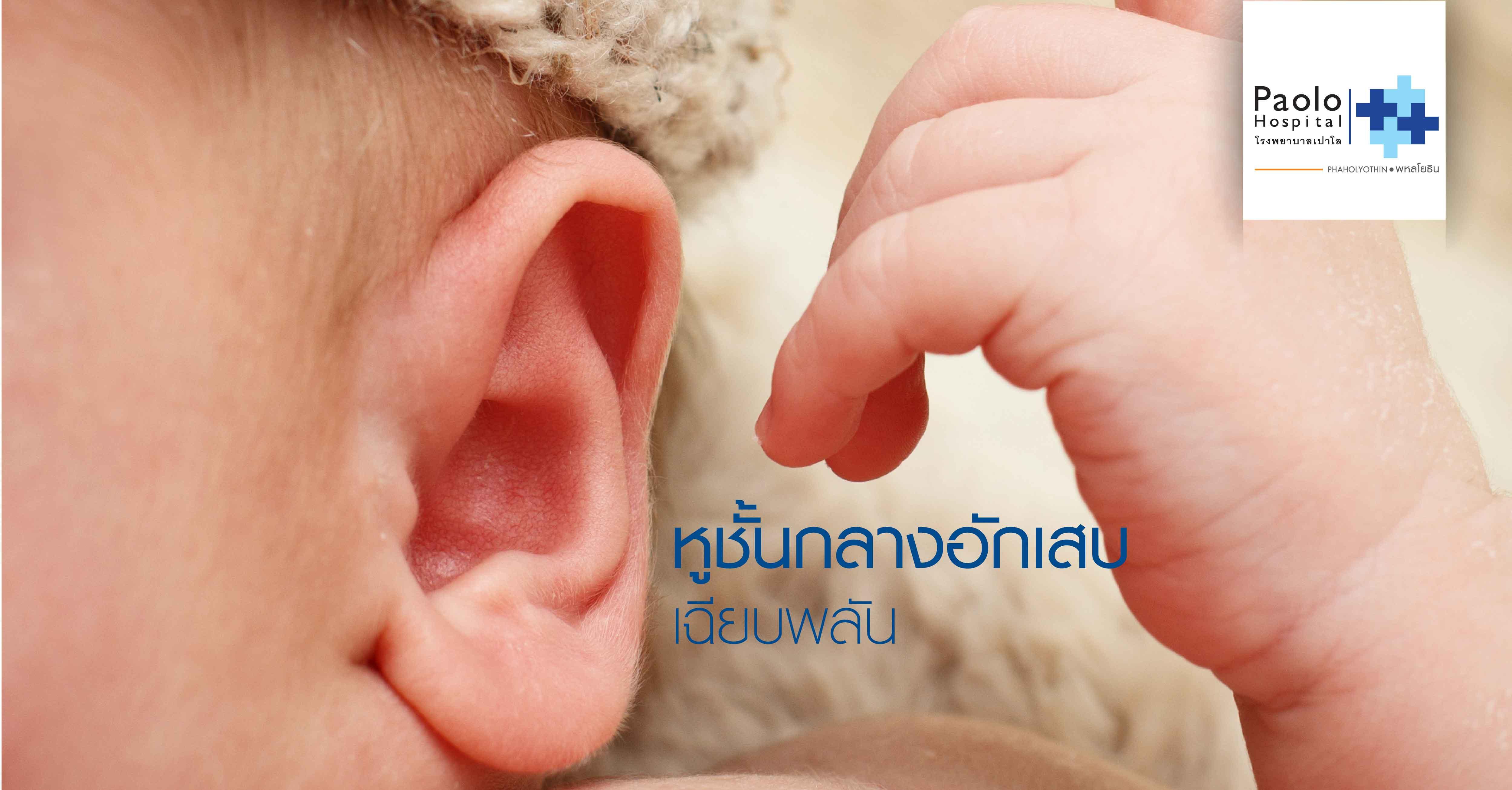 หูชั้นกลางอักเสบเฉียบพลัน